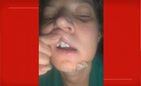 Deputada Joice Hasselmann exibe lesões — Foto: Reprodução